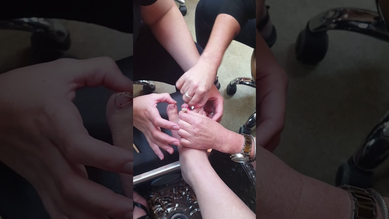 Toe Ring Removal! – Youtube Inside Best And Newest Custom Fit Toe Rings (View 15 of 15)
